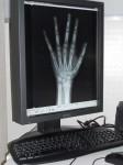 Radiologia Digitale, RIS e PACS