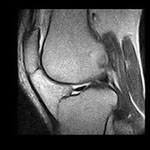 Risonanza Magnetica ginocchio