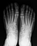 Rx piedi