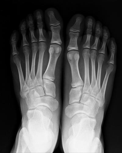 Rx osteoarticolare studio radiologico pandolfo for Piani di studio 300 piedi quadrati