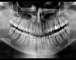 Panoramica dentaria